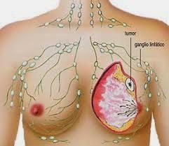 Cara pencegahan Penyakit Kanker Payudar