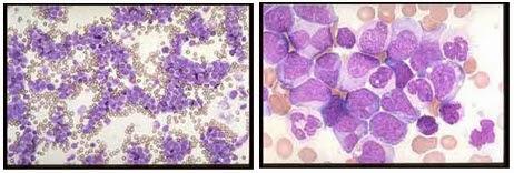 Leukemia Granulositik/Mielositik Kronik