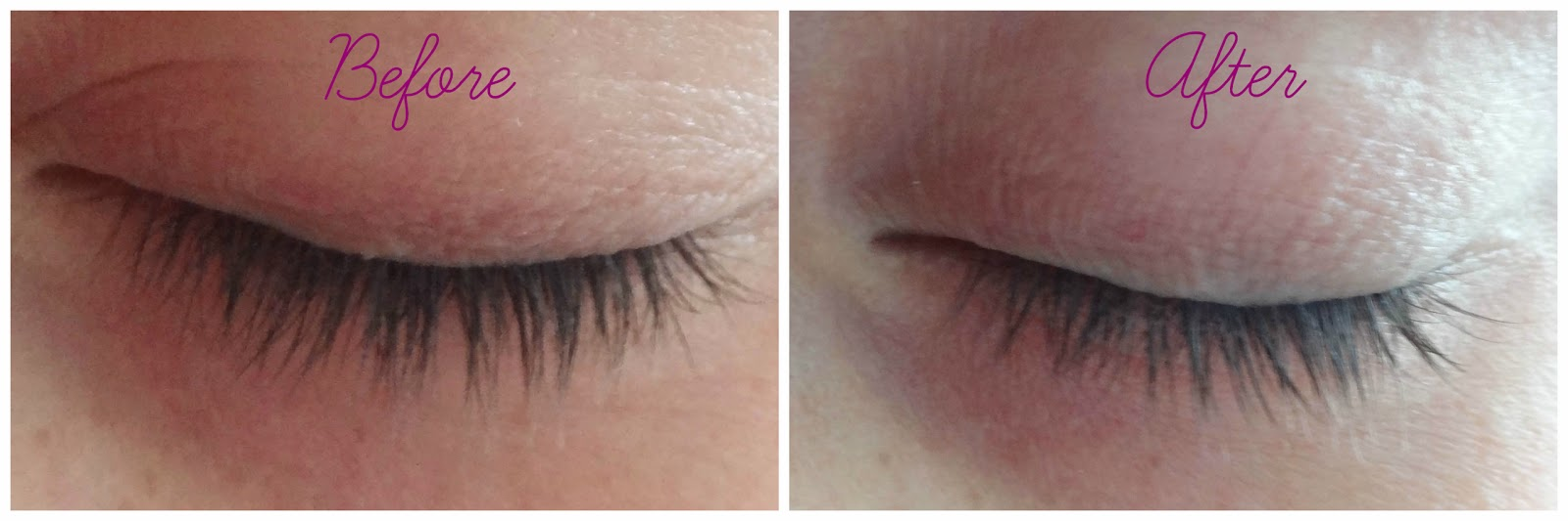 Before and After FEG Eyelash Enhancer
