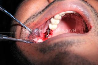 Dr Murugavel S Dental Implant Course Upper Bilateral