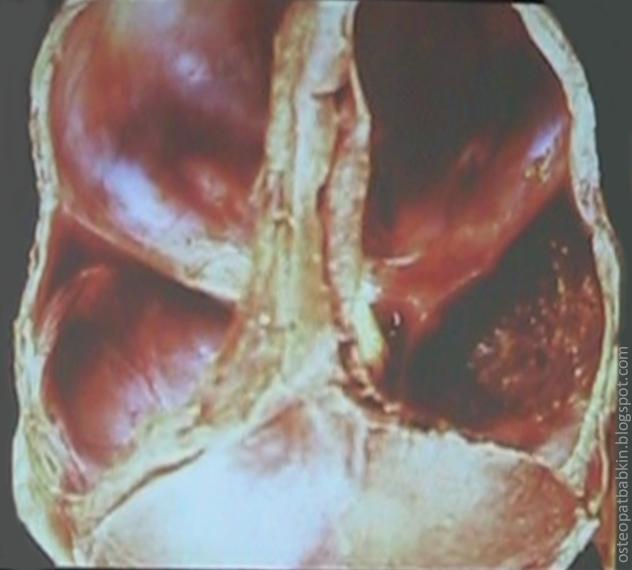 передний дуральный пояс, или стрессовый тяж, задний пояс, намет мозжечка