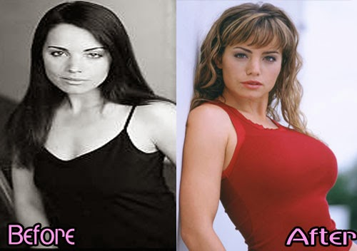 Erica Durance Plastic Surgery - Before & After Pictures