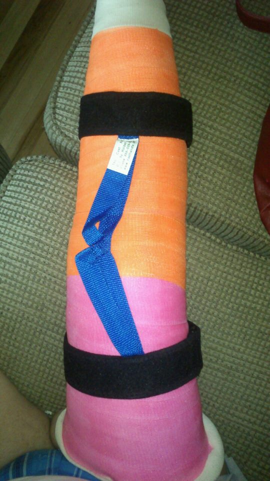 Broken Leg Swelling Cast