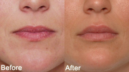 how to get rid of lip lines above lips