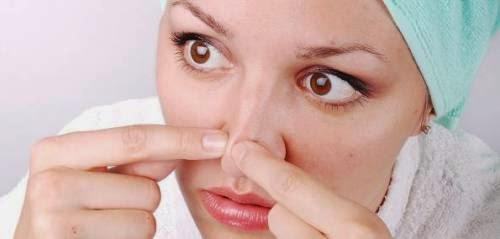 Tips Cara Mencegah Timbulnya Jerawat