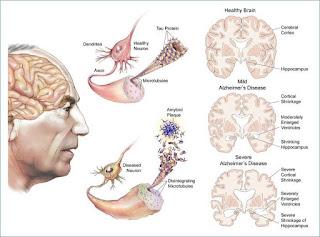 Penyakit Alzheimer Adalah Penyakit Saraf Otak?