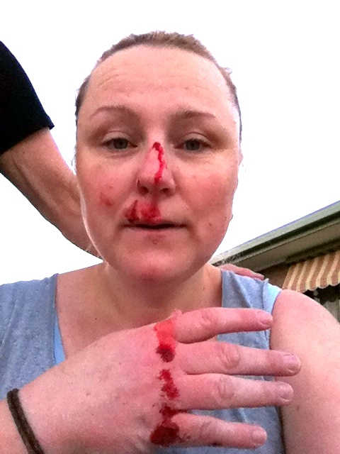 coming out of the fat closet face punched by the footpath