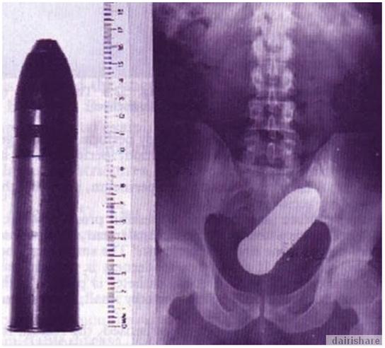 X-RAY PERBUATAN PALING BODOH MANUSIA