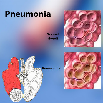 Pneumonia PowerPoint Template