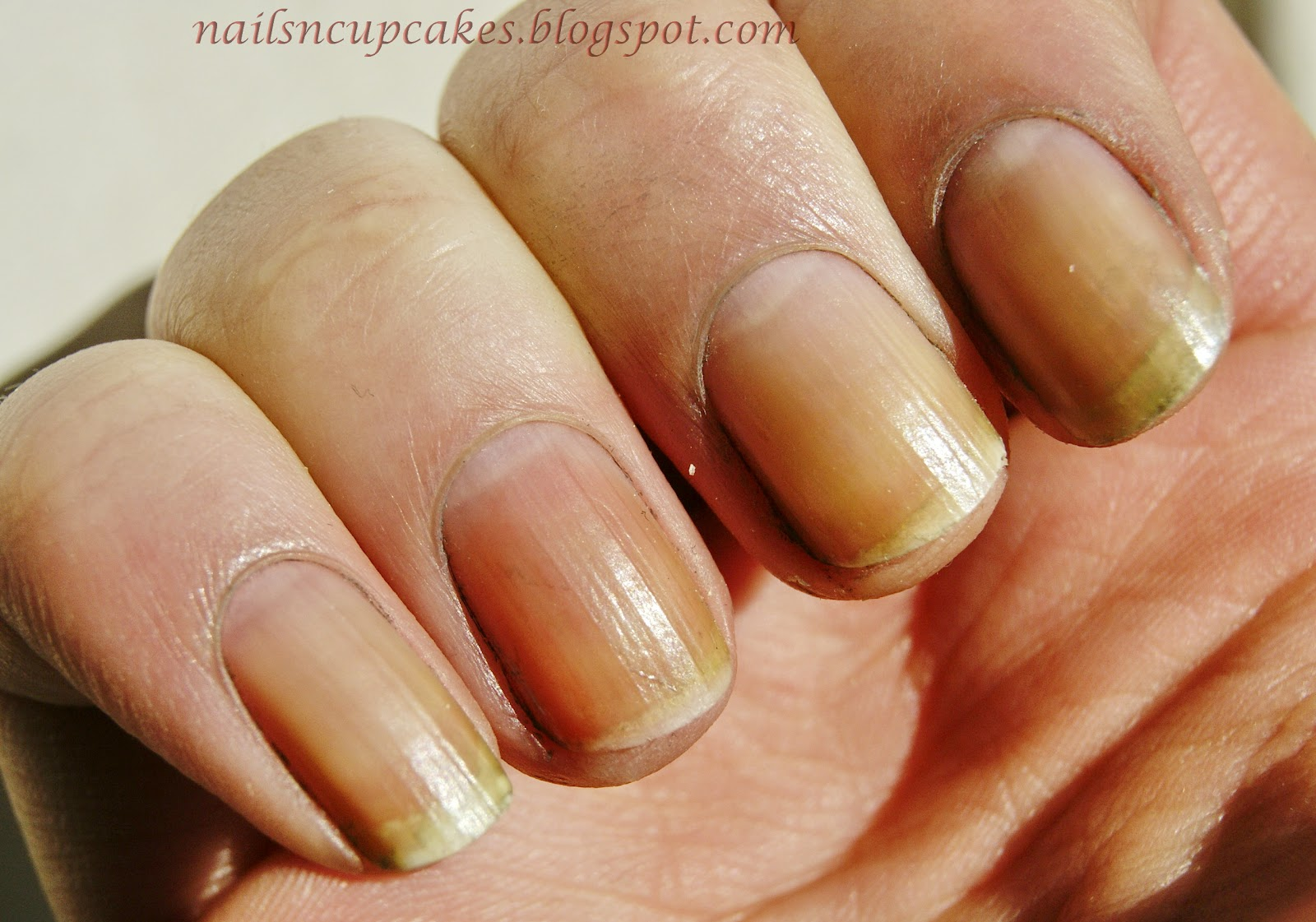 Nail Polish Yellow Stain Skin - To Bend Light