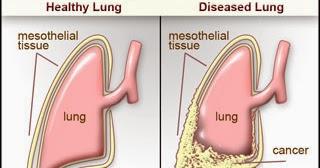 Average mesothelioma settlement amounts - Mesothelioma ...