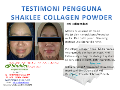 testimoni kolagen shaklee