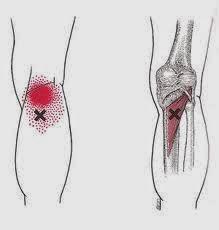 obat nyeri sendi | sakit lutut | radang sendi