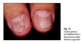 Unghie con danni alla matrice Striature e fissurazioni longitudinali (onicoressi)