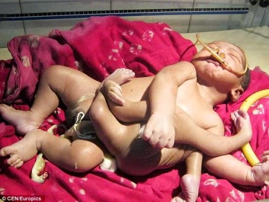 A má deformação da criança é decorrente de um irmão gêmeo que não se desenvolveu corretamente e se fundiu ao abdômen do irmão saudável (Foto: Reprodução DailyMail)