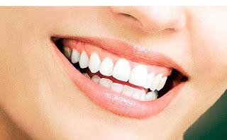 Cara Merawat Mulut dan Gigi Agar Sehat