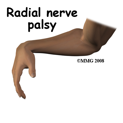 USMLE Review Notes: Radial Nerve Palsy