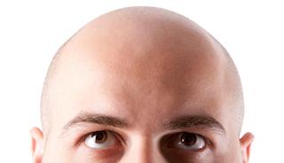 Berbagai Macam Kebotakan Rambut