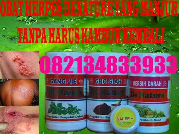 Obat Herpes Zoster Herbal