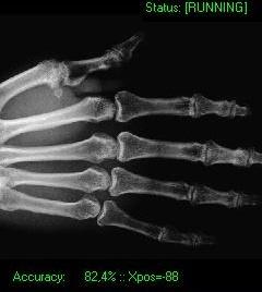 X-Ray 2.0