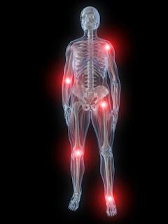 علاجات طبيعية لعلاج إلتهاب المفاصل والنقرس