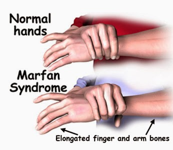 Marfan Syndrome Hands