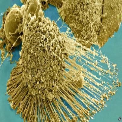 Câncer, proteínas combatem celulas cancerosas