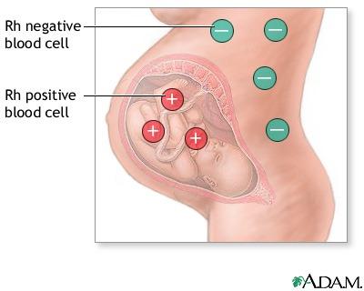 rhesus negativ gravid