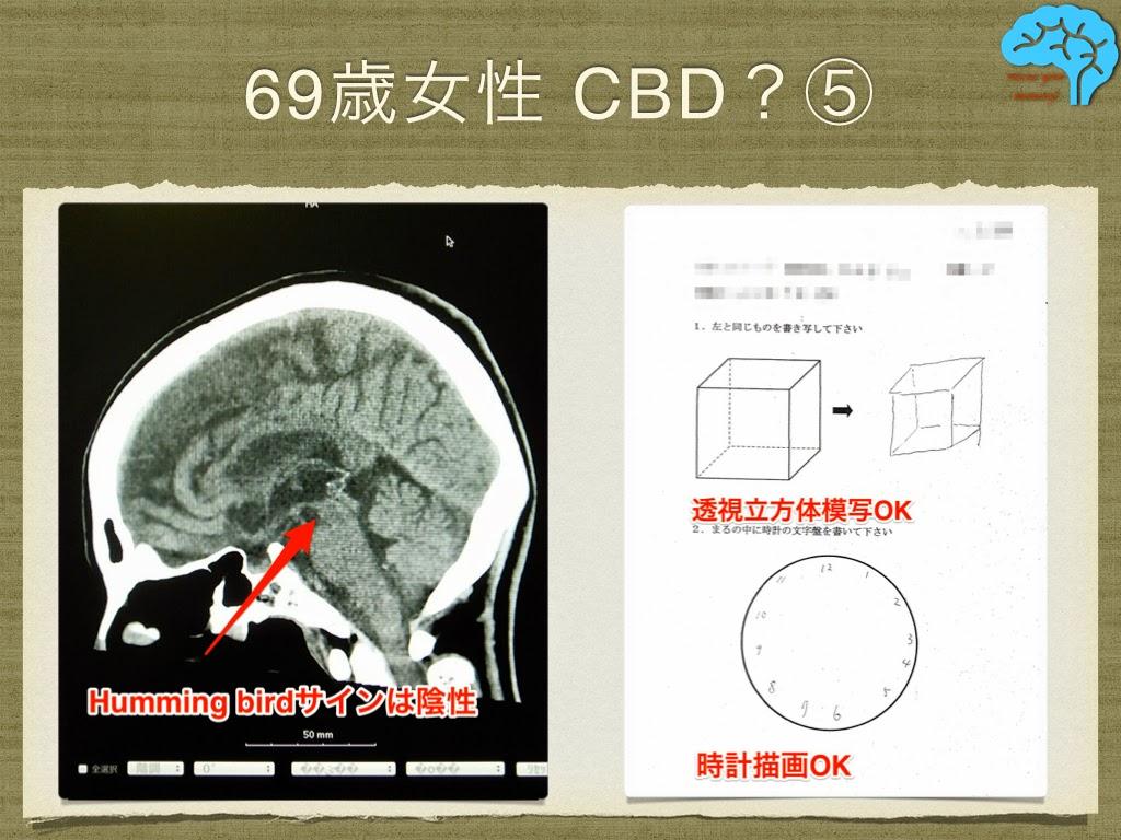皮質基底核変性症(CBD) 透視立方体模写と時計描画