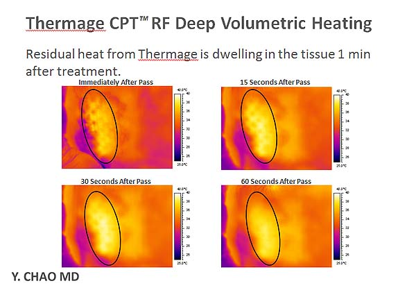 Thermage CPT DC tip Deep Volumetric Heating塑顏電波脂肪雕塑