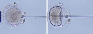 ICSI-espermatozoide-ovocito