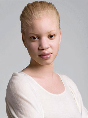 woman Hot albino