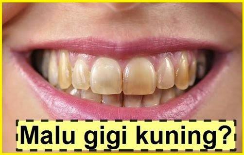 Rahsia Putihkan Gigi Dengan Mudah Cepat dan Murah