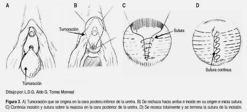 Quiste vaginal femenino Barthelom