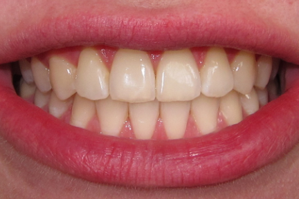 Feeling Unattractive And Self Conscious With Your Braces Well Whitening Teeth Before The