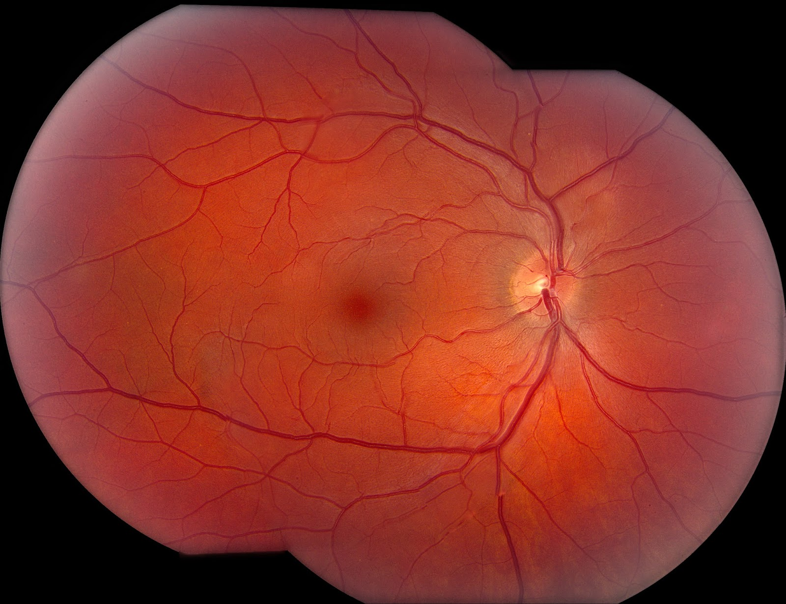 central serous retinopathy Diabetic retinopathy if you have been diagnosed with diabetes and are afraid of  losing your vision, you are not alone diabetes has many faces—it affects.