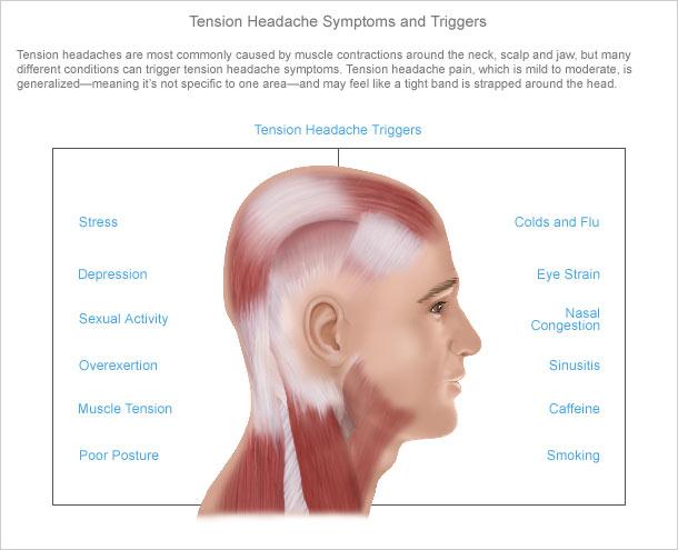 Headache treatment exercise