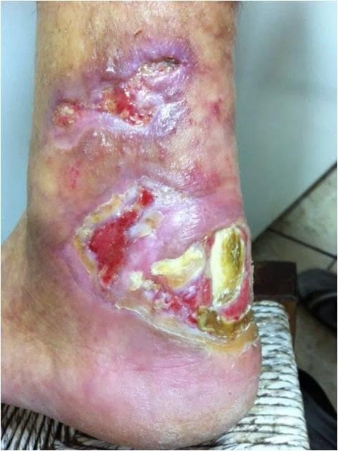 Medicina de tratamento de um fungo em pregos de pernas