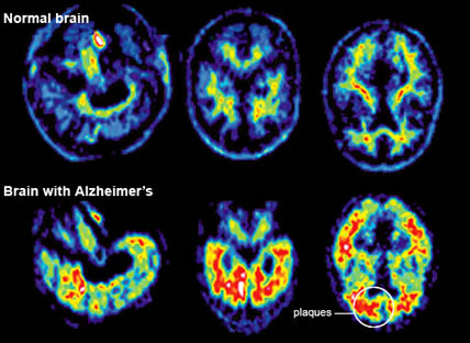 Professor: Aluminum in Food, Cosmetics and Medicine Is Poisoning Our Brains And Causing Alzheimer's Disease