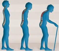 Pengobatan Osteoporosis Secara Herbal