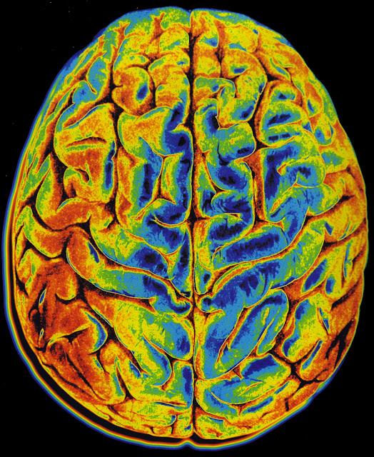 Brain Imaging6