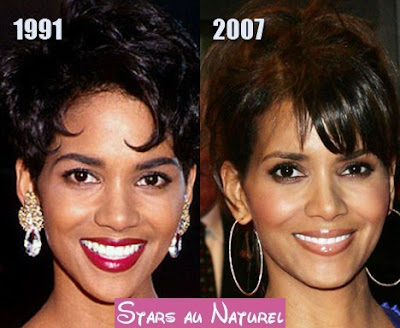 Halle Berry chirurgie