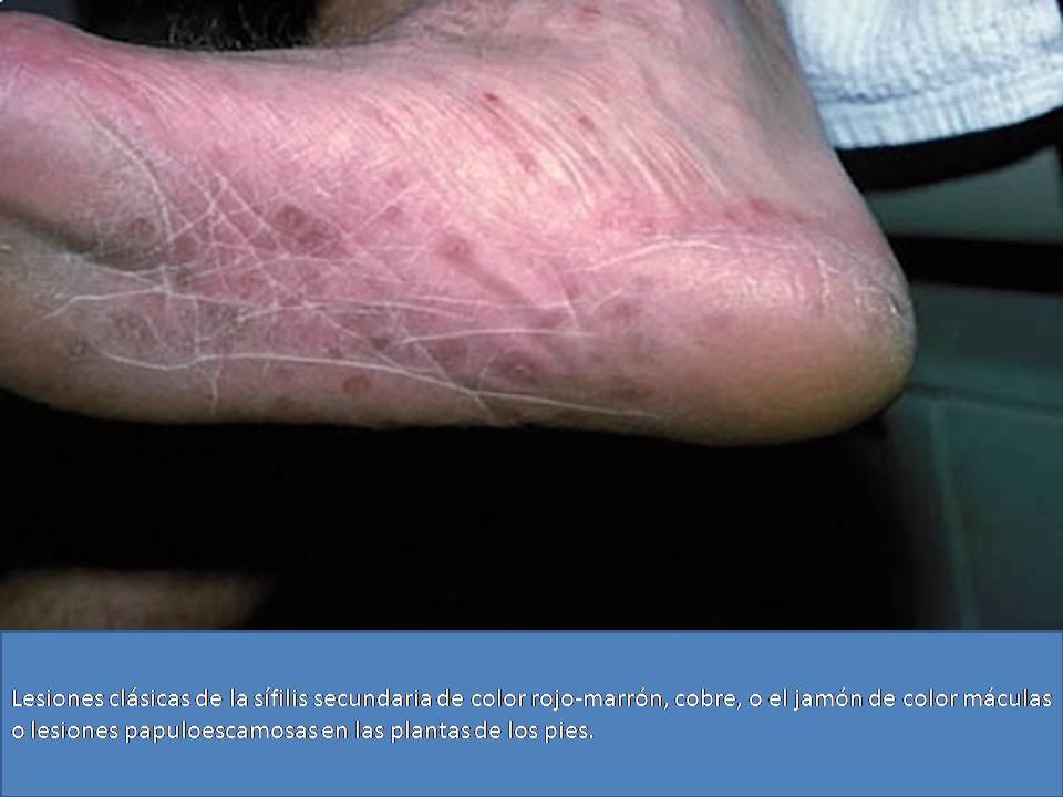 Como aceptar el carbón a atopicheskom la dermatitis
