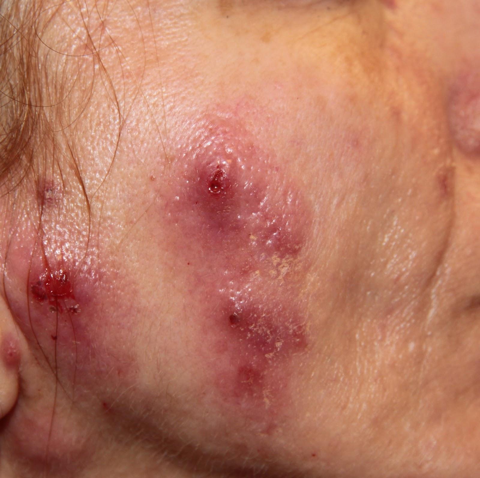 Il pacco di faccia pelle schiarente e facente di elastico