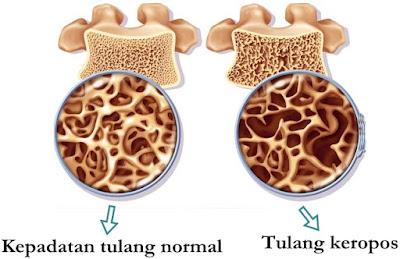Pengobatan Alternatif Tulang Keropos Tradisional