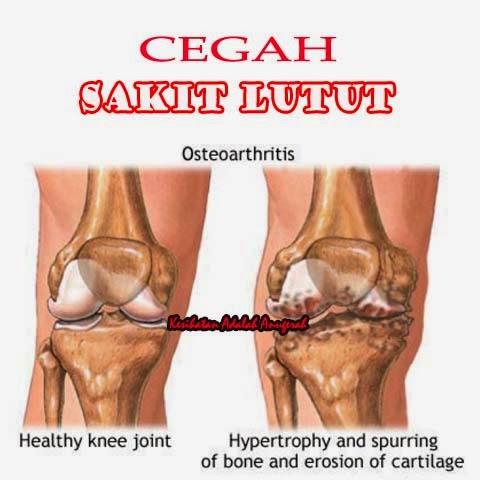 cegah sakit lutut.