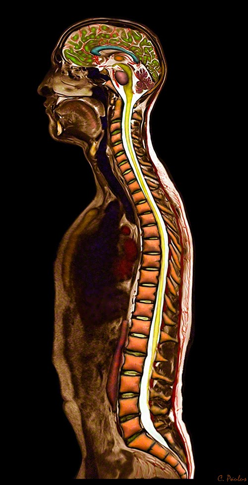 Color MRI of the Whole Body by Medical Media Images