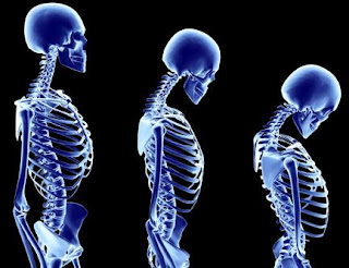 Healthy Bone For Preventing Osteoporosis