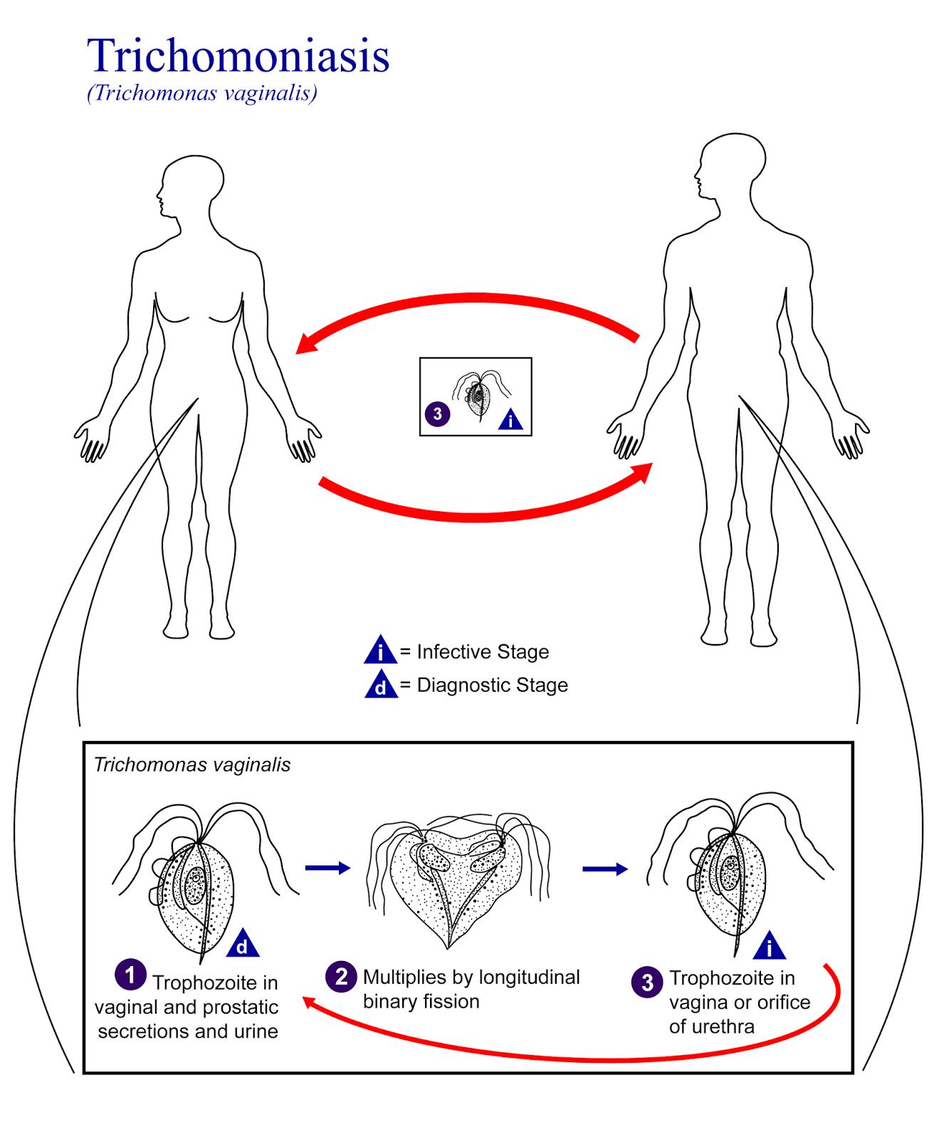 http://sehatmasakini.blogspot.com/2014/09/mengenal-penyakit-trichomoniasis.html
