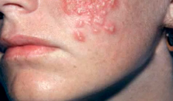 Herpes duration and AIDS 3
